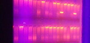 deoxyribonucleic kiseline, molekule, ultraljubičasto, svjetlo, agaroznom, gel, elektroforeza