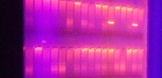 deoxyribonucleic, acid, molecule, ultraviolet, light, agarose, gel, electrophoresis