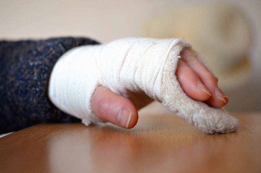 hand, finger, broken, plaster