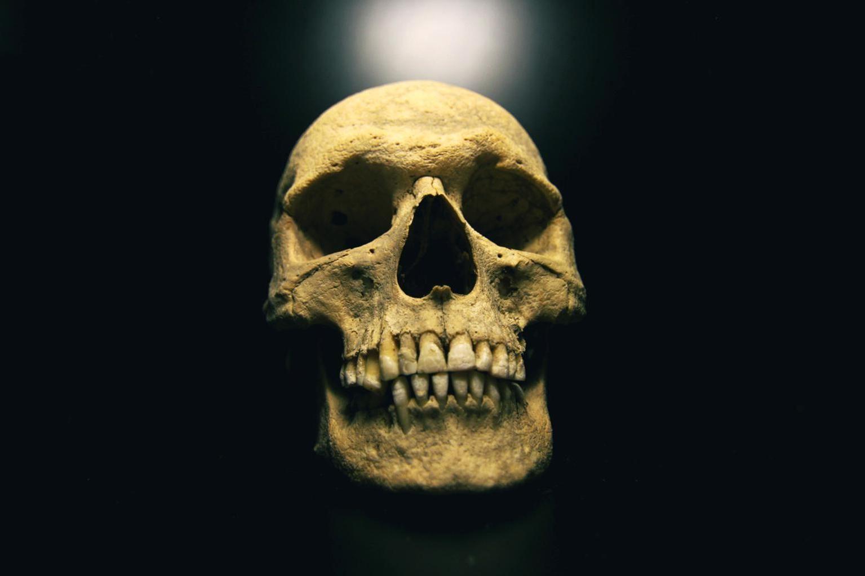 Kostenlose Bild: Schädel, Anthropologie, Knochen, Anatomie ...