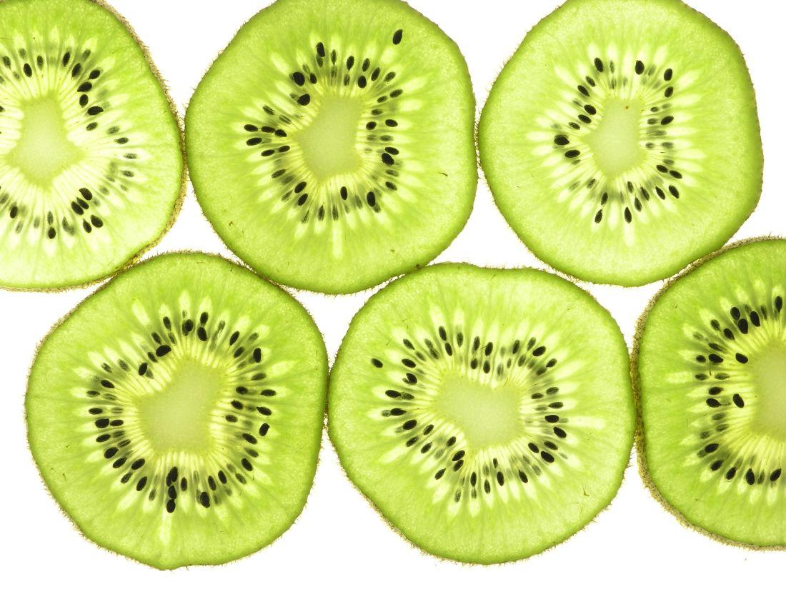 frugt, kiwi, mad, Skive, vitamin, kost, sød, ernæring