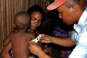 dziecko, ramię, obwód, mierzone, sprawdź, podpisuje, niedożywienie