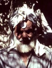 de près, le visage, du Pakistan, le paludisme, le contrôle, ouvrier, subissant, peau, patch, tests