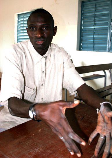 skolen, lærer, Senegal, arbeid, opprette, colleagial, atmosfære, studenter
