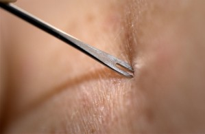clinician, demonstrates, bifurcated, needle
