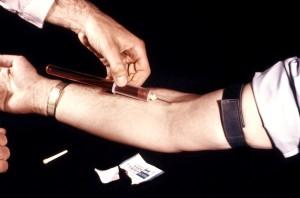 clinicien, montré, le sang, l'échantillon