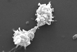 Acanthamoeba, polyphaga, protozoaires, l'interaction, la projection, pseudopodes