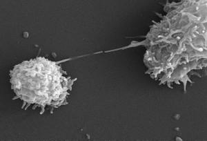 skeniranje, elektronskog mikroskopa, acanthamoeba polyphaga, protozoe
