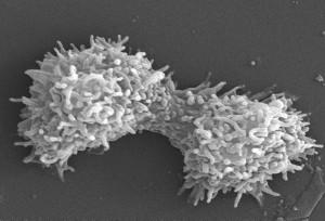 две, acanthamoeba polyphaga, протозоа