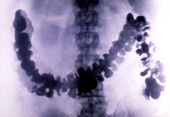 amebiasis, radiograph, barium, filled, colon