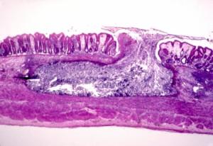 histopatológico, citoarquitectónica, reflexionar, intestinal, la amebiasis, una infección