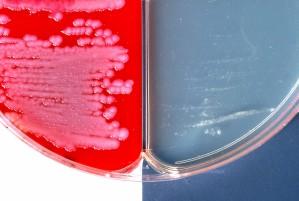 Bacillus anthracis, positiv, indkapsling, test, demonstreret, to, forskellige, agar, medier
