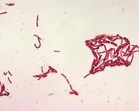 bacillus, malachite, vert, spore, tache, 1000x, grossissement