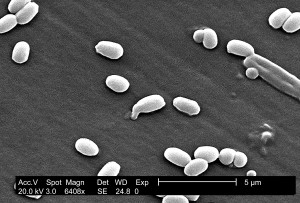 charakteristisch, aimes, Dehnung, anthracis, glatt, Oberfläche, Eiweiß, Mantel, Bakterien, Sporen