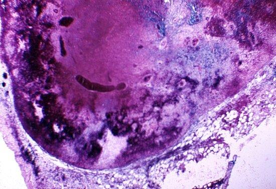 photomicrograph, mediastinal, lymph, node, cynomolgus, monkey, macaca fascicularis