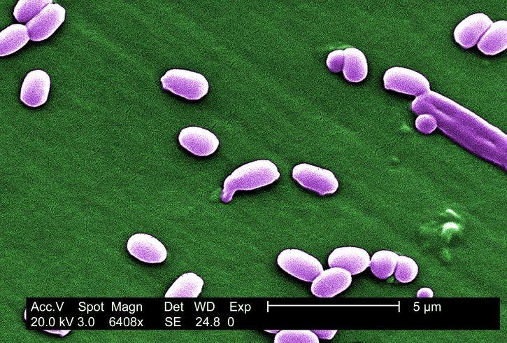 Scannen, elektronenmikroskopische Aufnahme, Sporen, aimes, Stamm, Bacillus, anthracis, Bakterien
