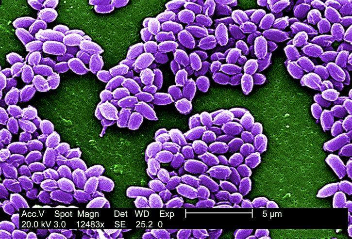 Sterne, ceppo, anthracis, rugose, superficie, proteine, cappotto, batteri, spore