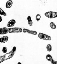 transmission, electron micrograph, bacillus anthracis