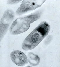 transmission, electron micrograph, bacillus anthracis, virions
