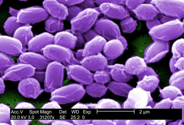 magas, nagyítás, 31207 x, spórák, sterne, törzs, bacillus anthracis, baktériumok