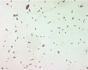 clostridium botulinum, spores, malachite, green, stain