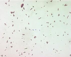 clostridium botulinum, spores, malachite, green, stain