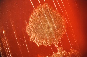 colonia, Clostridium grammo, positivo, batteri, cresciuto, cento, agar sangue, piatto