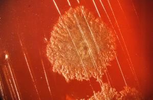 kolonie, clostridium gram, positief, bacteriën, gegroeid, procent, bloed agar, plaat