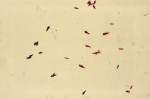 gram, micrograph, clostridium botulinum, type, thioglycollate, broth, incubated, 48hrs