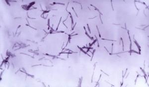 clostridium pathogènes, les membres, perfringens, septicum