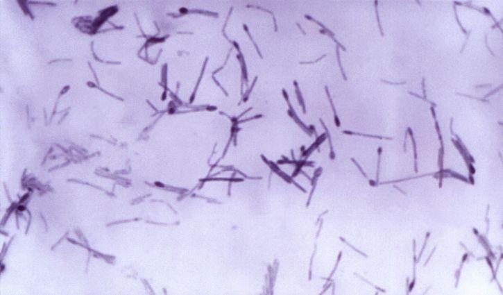 Clostridium patogena, medlemmar, perfringens, septicum