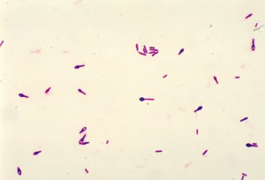 photomicrograph, clostridium botulinum, type, gram, stain, technique