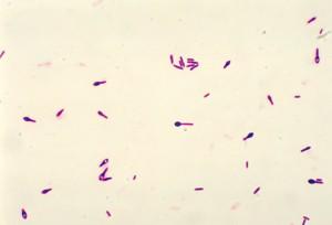 Clostridium Perfringens Gram Stain Morphology