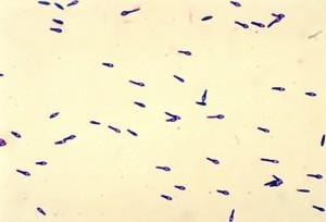 siedem, typy, zatrucie jadem kiełbasianym, toksyny, wyznaczony, litery, typy, choroby