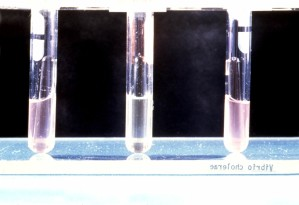 Heiberg, fermentation, laboratoire, essai, l'isolement, l'identification, vibrio cholerae