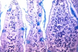 vibrio cholerae, aumento, mucose, la produzione, intestinale, la biopsia