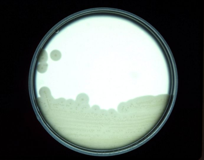 cultures, anaerobic, bacteria, clostridium perfringens, grown, egg, yolk, agar, plate