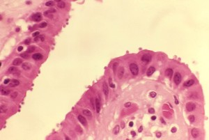 histopathologie, la vésicule biliaire, l'épithélium, spectacles, nombreux, cryptosporidium, organismes, luminal, surfaces