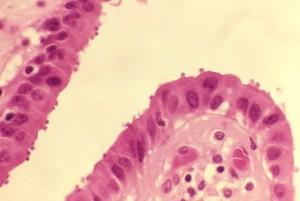 istopatologia, cistifellea, epitelio, spettacoli, numerosi, Cryptosporidium, organismi, luminale, superfici