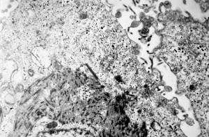 electronmicrograph, viser, tynn, delen, ebola, virus