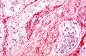 immunohistochemical, demonstration, ebola, virus, antigen, skin