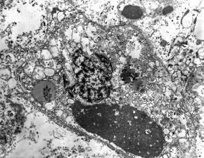 mikroskop-bilde, ebola, virus, prøven, mennesker, lever, vev, forstørret, 4000 x