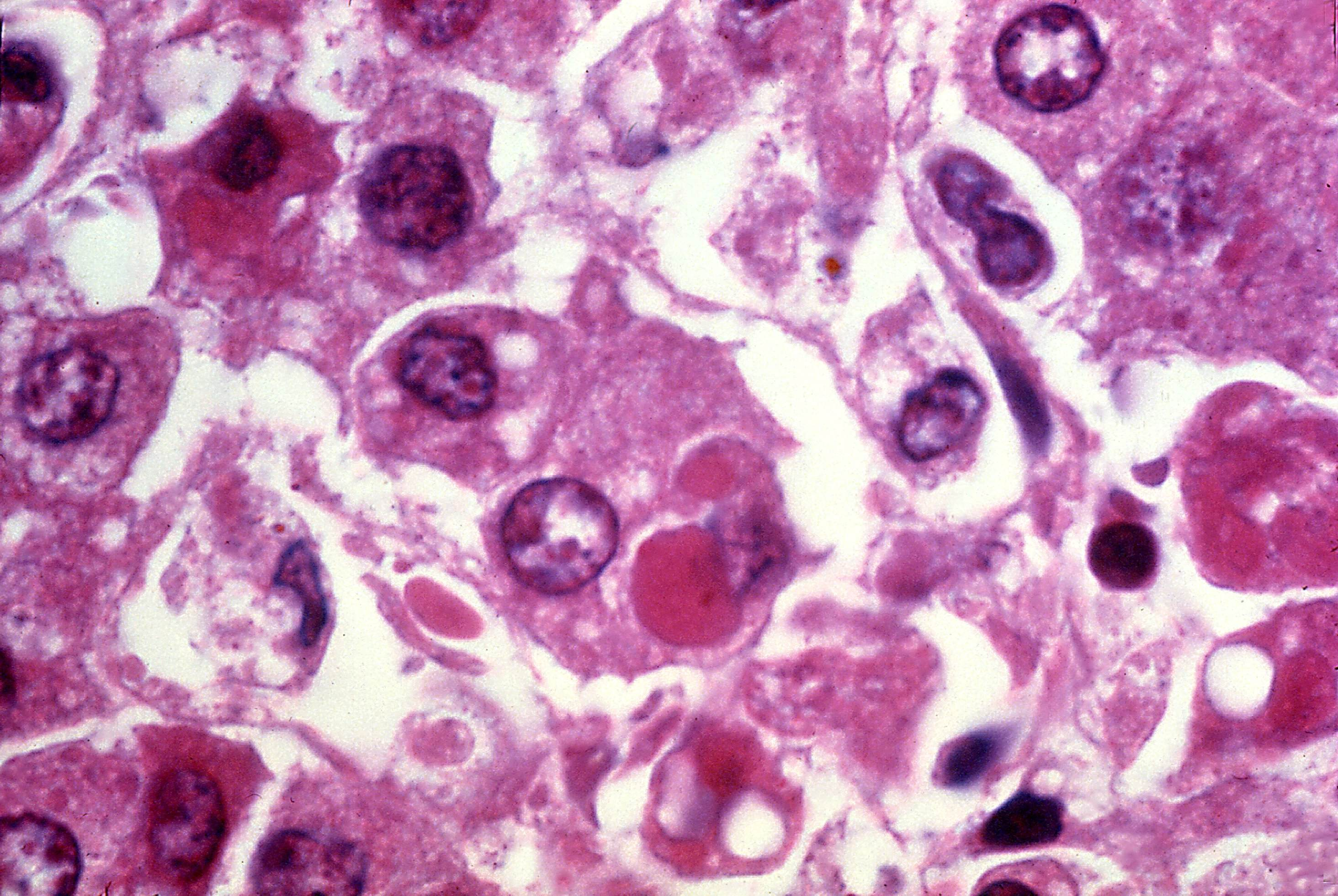 Free Picture Photomicrograph Human Liver Tissue Infection