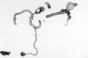 ultrastructural, curvilimorphologic, caractéristiques, ebola, virus