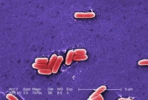 coli, O157, Infektionen, schweren, blutigen, Durchfall, Bauch, Krämpfe