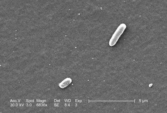 coli, illness, 1982, severe, bloody diarrhea, cells