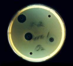 Escherichia coli, spoločné, aerobic, baktérie, veľké, čriev, zdravé, jednotlivcov