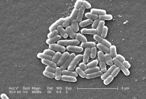 escherichia coli, O157, emerging, foodborne, illness, estimated, 73000, cases, infection