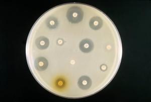 par exemple, un antibiotique, la sensibilité, le test, mélangé, culture, coli, Proteus