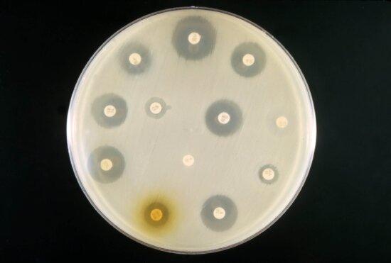 example, antibiotic, sensitivity, test, mixed, culture, coli, proteus